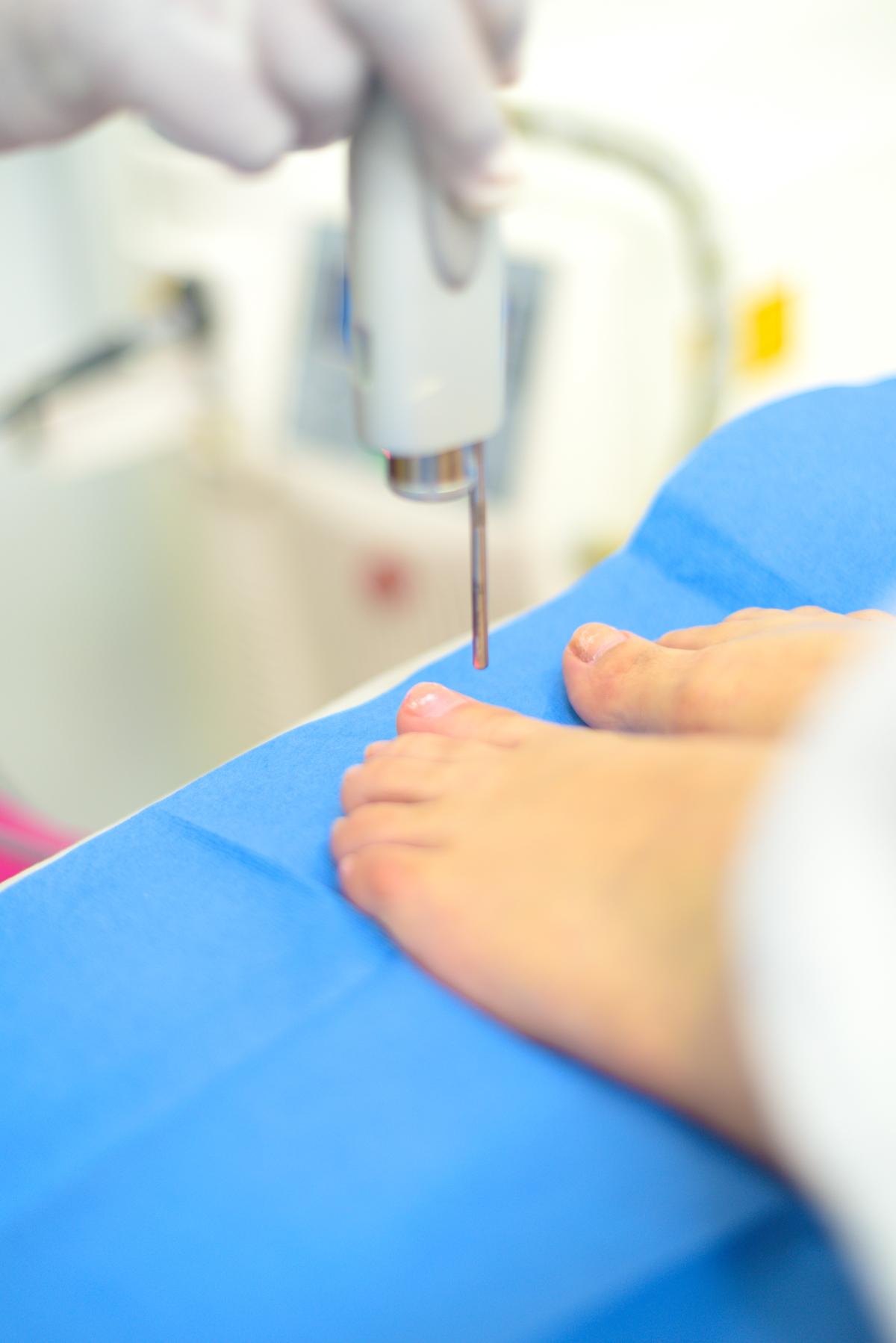 Tratamiento Para la Onicomicosis (Hongos en Uñas)