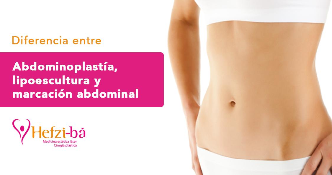 Diferencias entre liposucción, lipoescultura y otras Cirugías Plásticas, República Dominicana