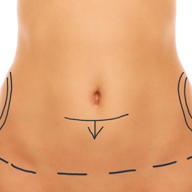 Tipo de abdominoplastia,parcial, cirugía plástica en República Dominicana