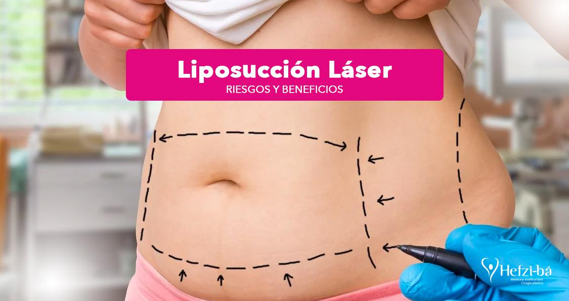 Liposucción Láser: riesgos y beneficios